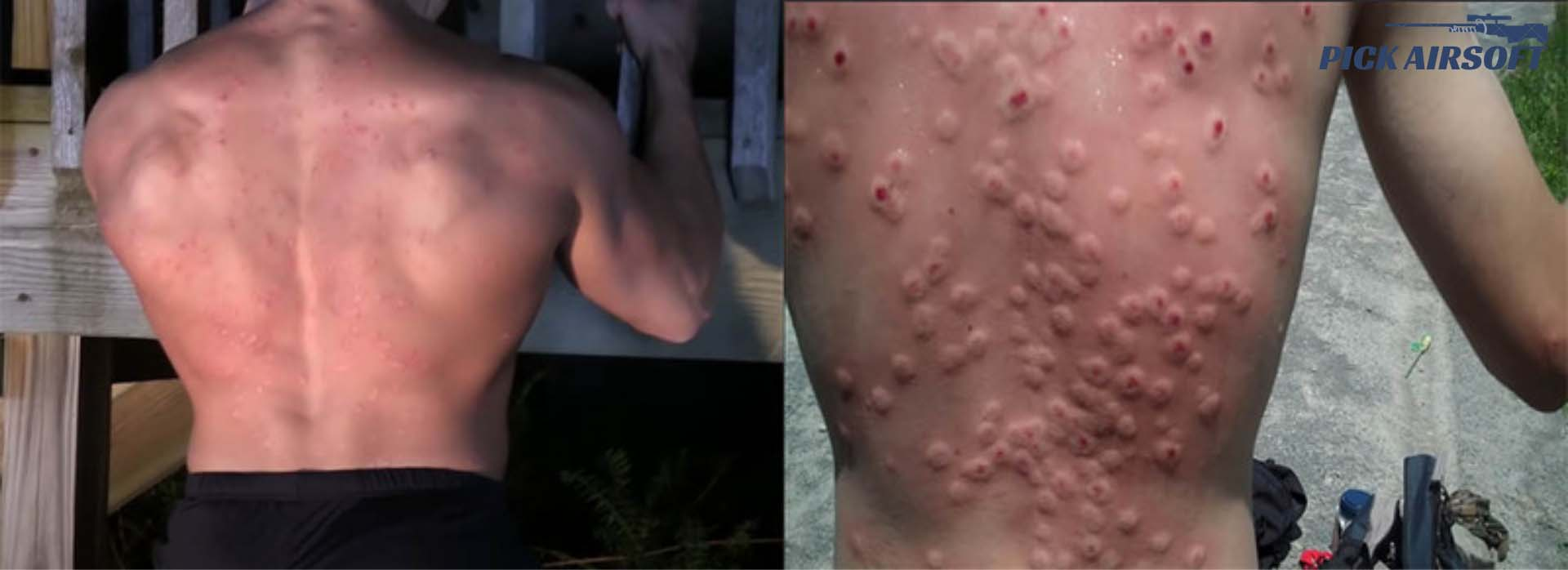 does-airsoft-damage-your-skin